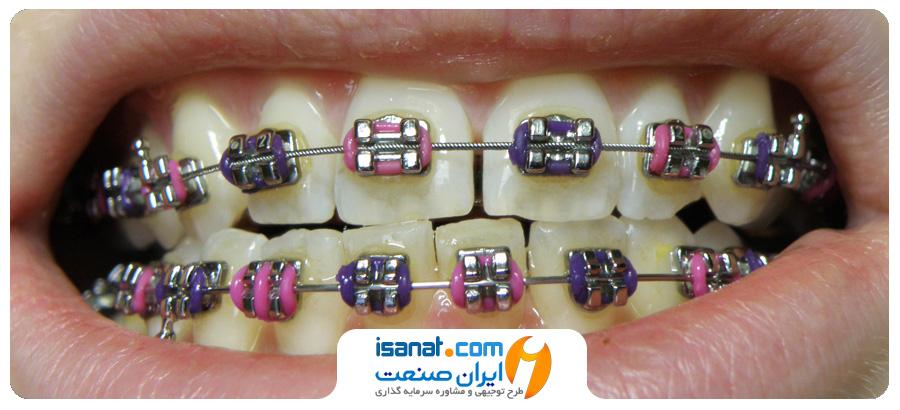 طرح توجیهی تجهیزات دندانپزشکی، ارتودنسی و ایمپلنت